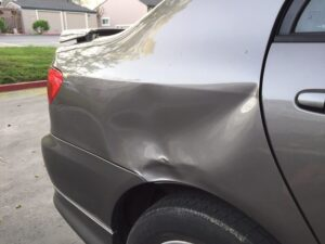 Can I Claim Insurance For Car Dents