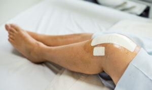 average workers comp settlement for knee injury