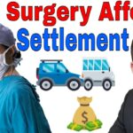 Workers Comp Settlement After Surgery - Here's What You Need To Know